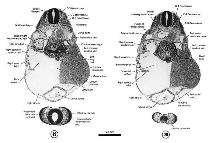 Open PDF version of FIG 5-15, A section through the C-3 neural crest and the tracheal bifurcation. A section through the C-4 neural crest and the cranial part of the primitive left ventricle.