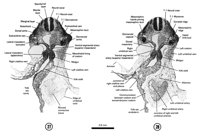 Open PDF version of FIG 5-19, A section through the T-1 neural crest, the yolk stalk and the cranial edge of the umbilical cord. A section through the T-1 neural crest and the middle of the midgut and yolk stalk junction.