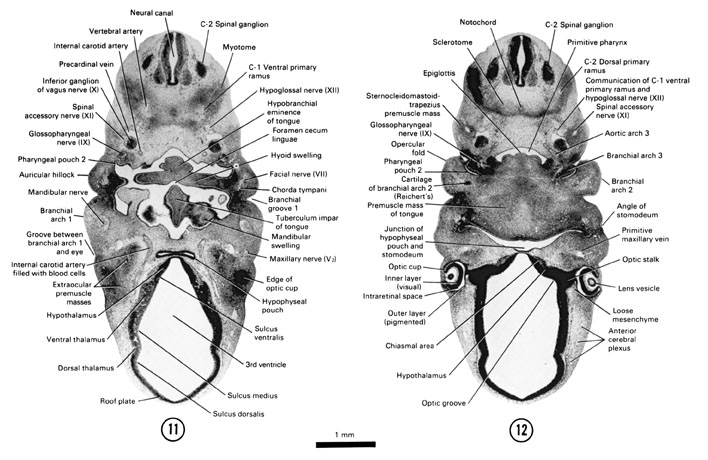Open PDF version of FIG 6-11, A section through the C-2 spinal ganglion and dorsal surface of the tongue. A section through the premuscle mass of the tongue and the junction of the hypophyseal pouch with the stomodeum.