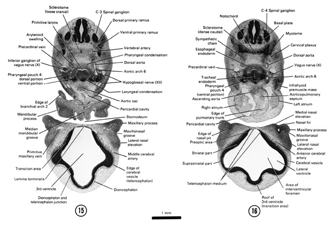 Open PDF version of FIG 6-13, A section through the primitive larynx and fourth pharyngeal pouch. A section through the C-4 spinal ganglion and the cranial edge of the heart.