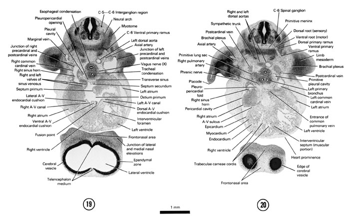 Open PDF version of FIG 6-15, A section through the atrioventricular (AV) region of the heart. A section through the C-6 spinal ganglion and tracheal bifurcation forming primary bronchi.