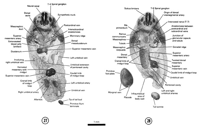 Open PDF version of FIG 6-19, A section through the T-4 spinal ganglion, herniated midgut and tip of the tail bud. A section through the T-6 spinal ganglion and junction of the umbilical vessels with the ventral body wall.