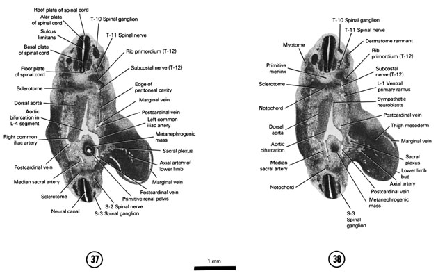 Open PDF version of FIG 6-24, A section through the T-10 and S-3 spinal ganglia. A section through the origin of the median sacral artery.