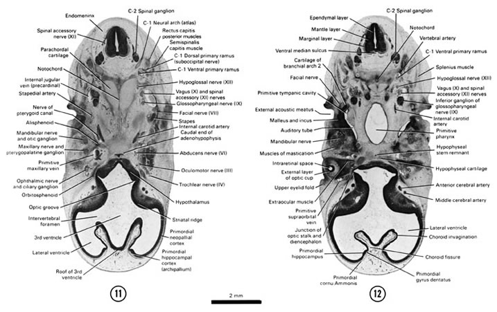 Open PDF version of FIG 7-11, A section through the C-2 spinal ganglion. A section through the dorsal edge of the optic cup and primitive pharynx.