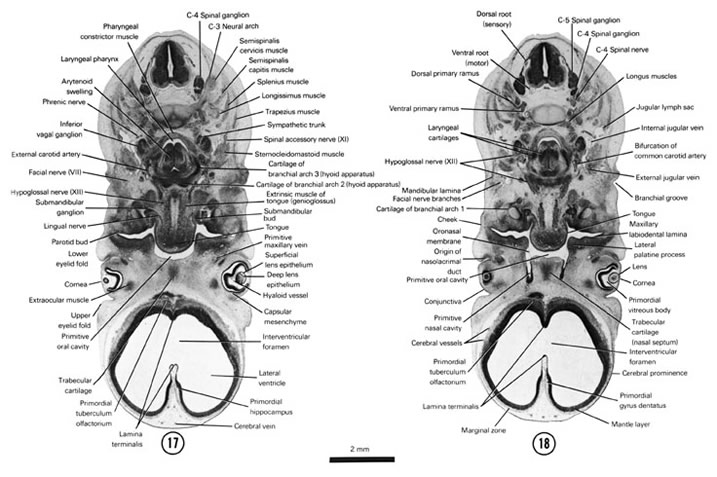 Open PDF version of FIG 7-14, A section through the extrinsic tongue muscles and hyoid apparatus (second and third arch cartilages). A section through the laryngeal cartilages and caudal part of the primitive nasal cavity.