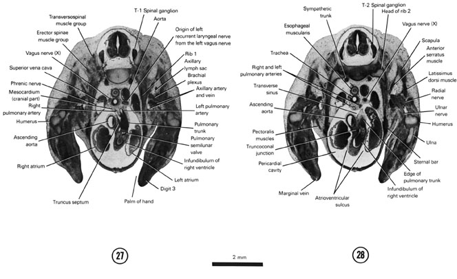 Open PDF version of FIG 7-19, A section through the pulmonary semilunar valve. A section through the T-2 spinal ganglion.
