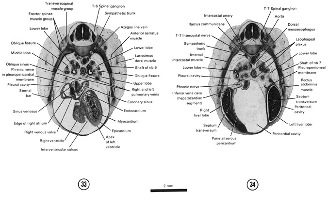 Open PDF version of FIG 7-22, A section through the T-6 spinal ganglion and caudal edge of the ventricles. A section through the T-7 spinal ganglion and the cranial edge of the liver.