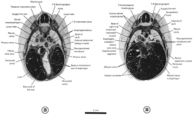 Open PDF version of FIG 7-23, A section through the T-8 spinal ganglion and caudal part of the pericardial cavity. A section through the pleuroperitoneal canal and base of the lungs.