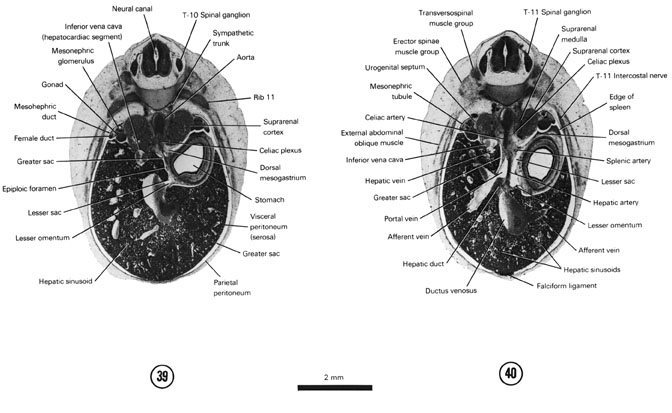 Open PDF version of FIG 7-25, A section through the epiploic foramen. A section through the T-11 spinal ganglion and the cranial edge of the spleen.