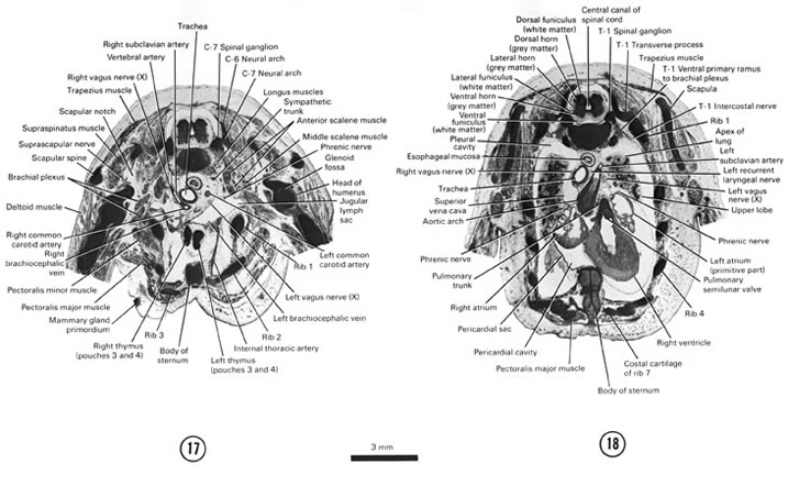 Open PDF version of FIG 8-11, A section through the sternum, viscera at the root of the neck and C-7 spinal ganglion. A section through the caudal part of the sternum, cranial part of the heart and lungs and T-1 spinal ganglion.