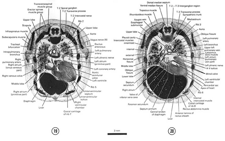 Open PDF version of FIG 8-12, A section through the cranial edge of the liver and diaphragm, tracheal bifurcation and T-2 spinal ganglion. A section through the apex of the heart, root of the lungs and T-2–T-3 interganglion region.