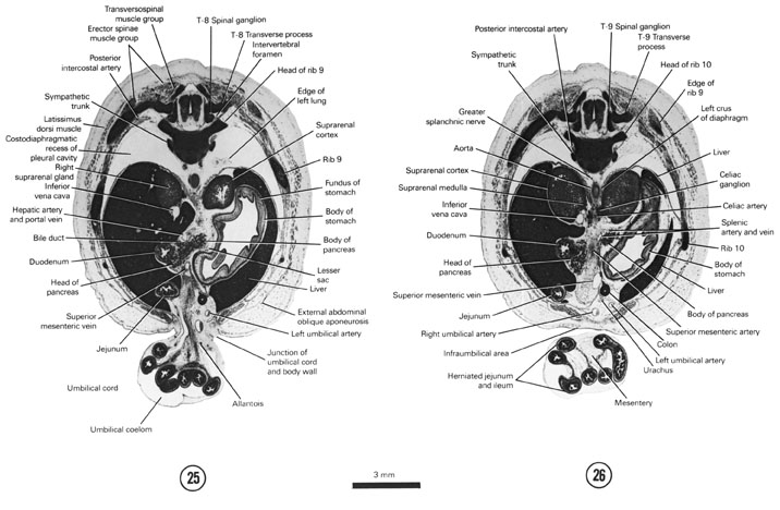 Open PDF version of FIG 8-15, A section through the pancreas, caudal edge of the lung and T-8 spinal ganglion. A section through the celiac and T-9 spinal ganglia.
