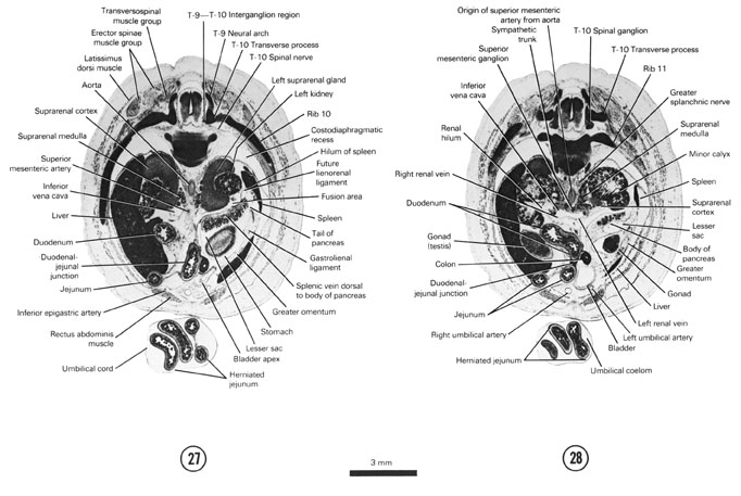 Open PDF version of FIG 8-16, A section through the duodenal-jejunal junction, spleen and T-9–T-10 interganglion region. A section through the cranial edge of the gonads, renal hilum and T-10 spinal ganglion.