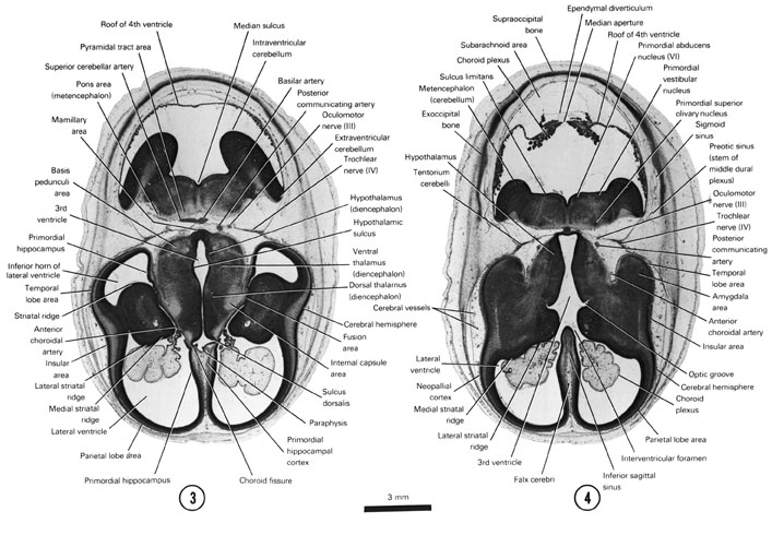 Open PDF version of FIG 8-4, A section through the cerebral hemispheres (insular area and parietal and temporal lobe areas) and middle of the diencephalon and metencephalon. A section through the cerebral hemispheres, hypothalamus and metencephalon.