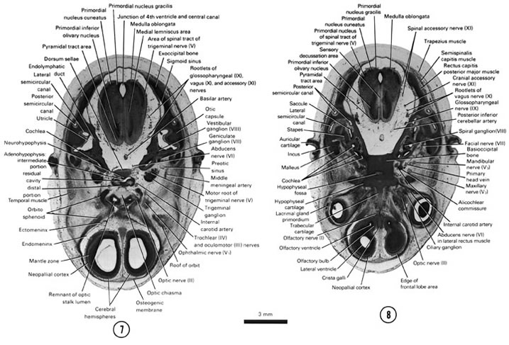 Open PDF version of FIG 8-6, A section through the cerebral hemispheres, optic nerve, optic chiasma and medulla oblongata. A section through the edge of the cerebral hemispheres (frontal lobe area) and medulla oblongata.