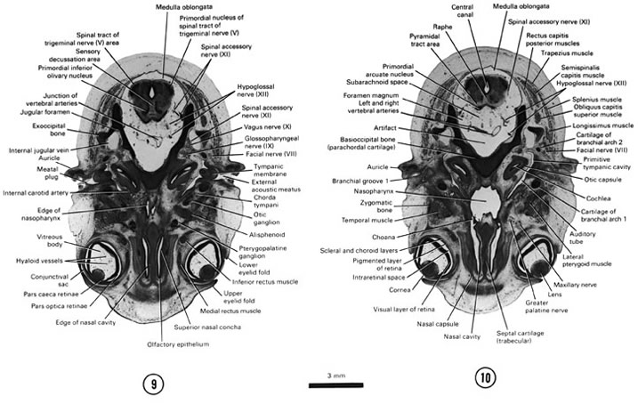 Open PDF version of FIG 8-7, A section through the medulla oblongata and the cranial edge of the nasal cavity and nasopharynx. A section through the middle of the eye and caudal part of the medulla oblongata.