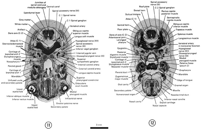 Open PDF version of FIG 8-8, A section through the caudal part of the secondary palate, junction of the medulla oblongata and the spinal cord and the C-1 spinal ganglion. A section through the dorsal edge of the tongue and the C-2 spinal ganglion.