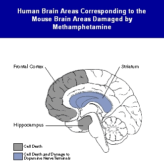 Human Brain Areas Corresponding to the Mouse Brain Areas Damaged by Methamphetamine.
