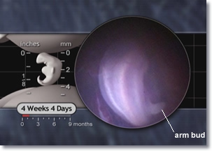 4 week 4 days embryo, arm bud