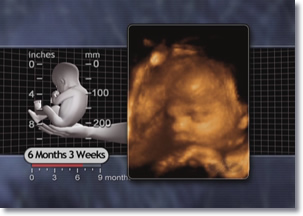 6 Six Month 3 weeks Fetus, 3D Ultrasound