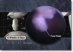 6 weeks 6 days Embryo foot plate, metatarsal bones