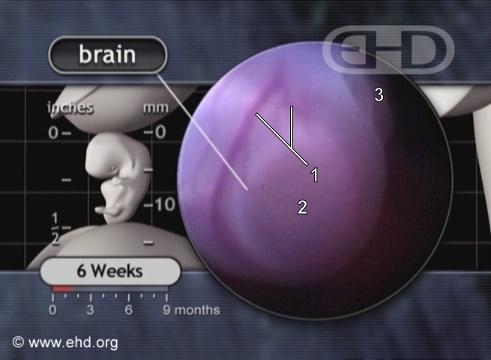 Primer plano de la cabeza: cerebro [Haga clic para la siguiente imagen]