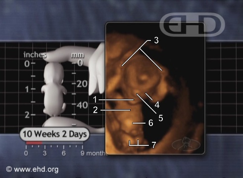 Fetus, 10-Weeks [Click for next image]