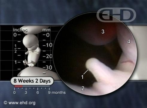 Genital Tubercle [Clique para a próxima imagem]