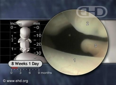 Coxa Esquerda, Tubérculo Genital [Clique para a próxima imagem]