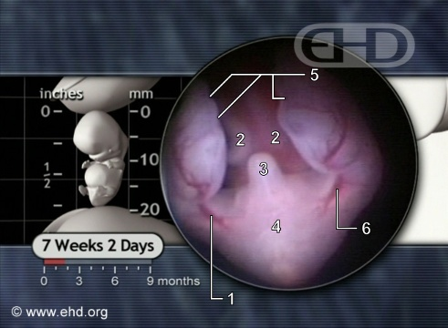 Embrión de abajo a las 7 semanas y 2 días [Haga clic para la siguiente imagen]