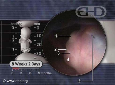 Nariz, embarazo de ocho semanas [Haga clic para la siguiente imagen]