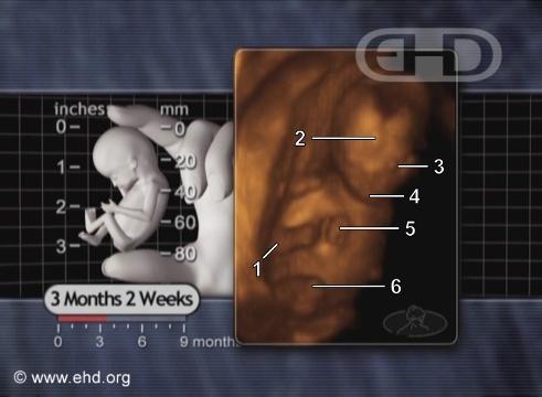 El feto de 3½ meses [Haga clic para la siguiente imagen]