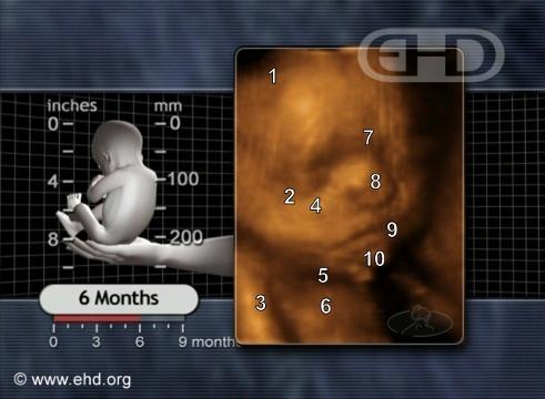 El rostro fetal de 6 meses [Haga clic para la siguiente imagen]