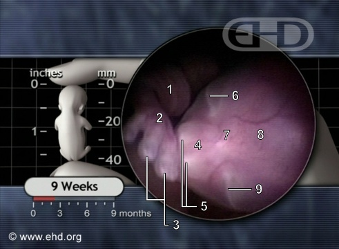 The 9-Week Fetus [Click for next image]