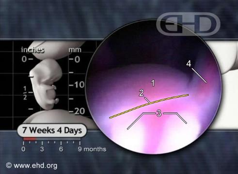 El abdomen y la vena umbilical [Haga clic para la siguiente imagen]