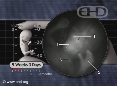 A Face Fetal e a Mão Esquerda [Clique para a próxima imagem]