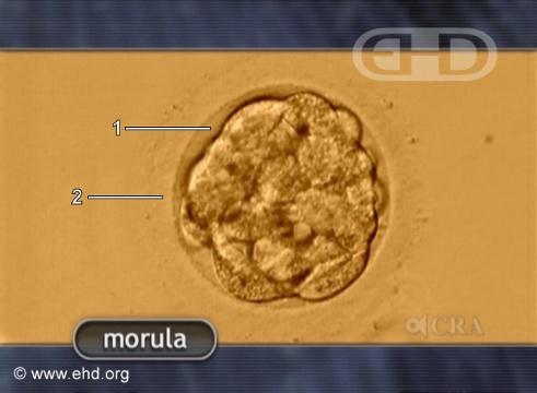 La mórula humana [Haga clic para la siguiente imagen]