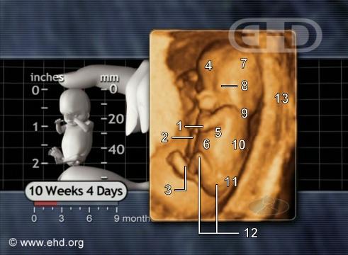 La posición fetal original [Haga clic para la siguiente imagen]