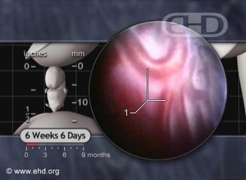 La placenta desde adentro [Haga clic para la siguiente imagen]