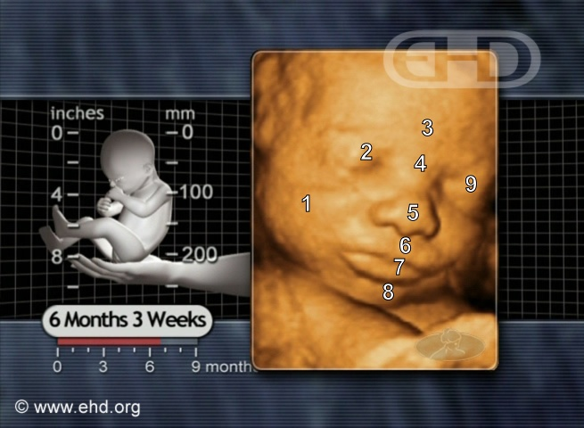 Face, 27-Week Fetus [Click for next image]