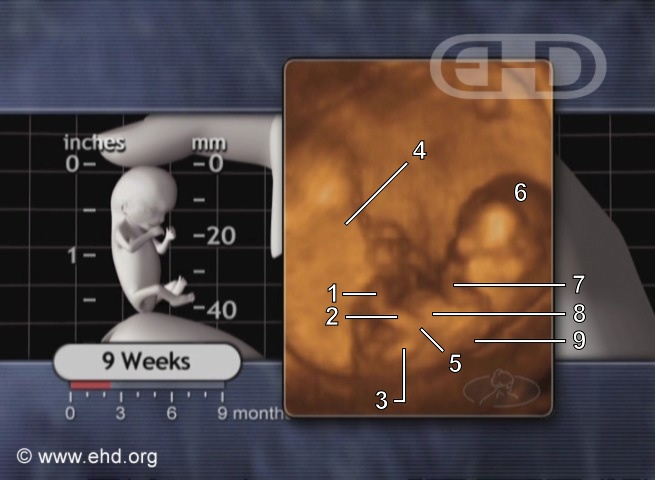 The 9-Week Fetus in Motion [Click for next image]