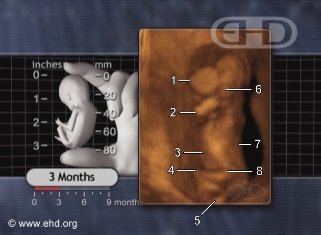 Three-Month Fetus [Click for next image]