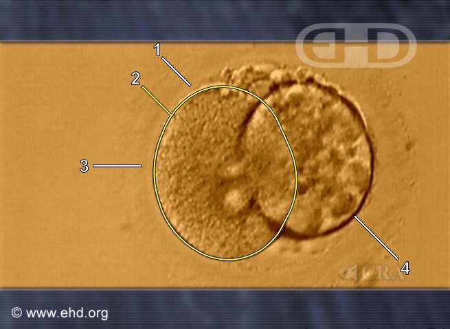 Two-Cell Human Embryo [Click for next image]