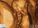 Ultrassom 4D