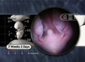 Lower Embryo at 7 Weeks, 2 Days