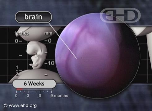 Close da Cabeça, Cérebro [Clique para a próxima imagem]