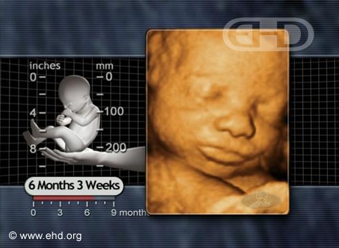 Rostro de feto de 27 semanas [Haga clic para la siguiente imagen]