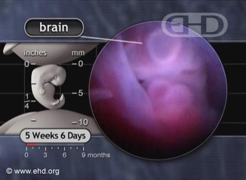 Corazón y cerebro [Haga clic para la siguiente imagen]