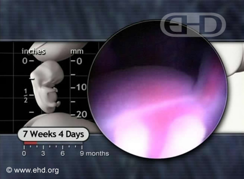 Abdome e Veia Umbilical [Clique para a próxima imagem]