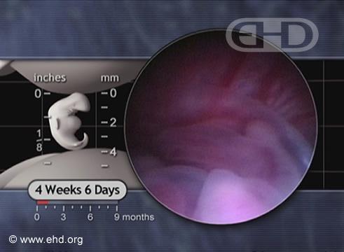 El embrión de abajo [Haga clic para la siguiente imagen]